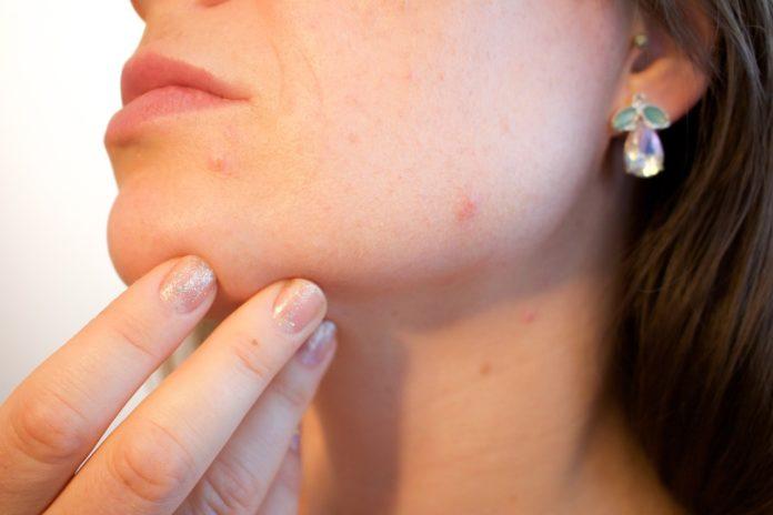 remedio-acne