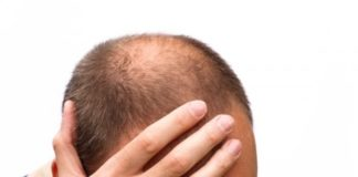 perdida-cabello